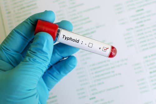 Understand if you need a typhoid vaccine before you set out on your adventure.
