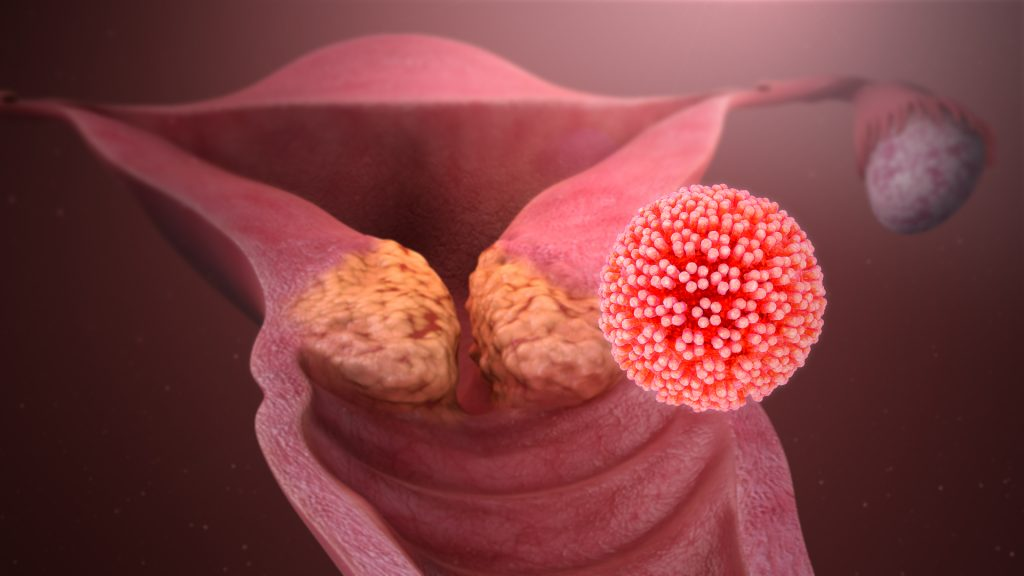 HPV or Human papillomavirus is one of the most common sexually transmitted infections (STIs) Worldwide. Many types of HPV have been identified, some leading to cancer or other skin lesions. HPV has almost no symptoms.